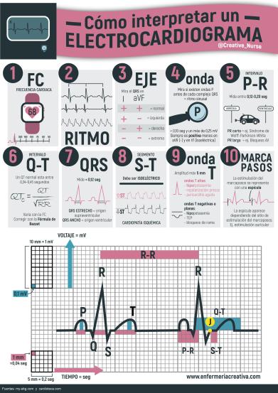 Resultado de imagen para interpretacion electrocardiografica
